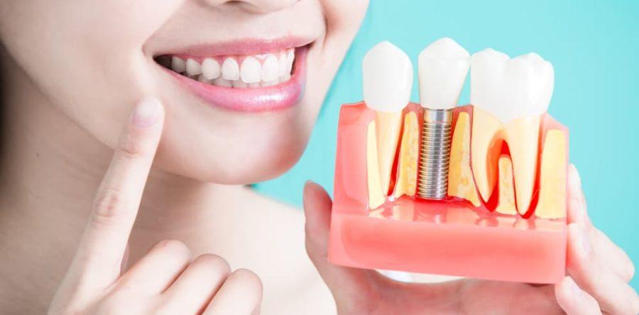 The 5 Benefits of Dental Implants | Carlingwood Dental Centre